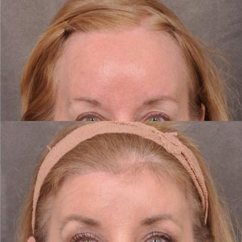ForeheadPlasty / Hairline Lowering - Front