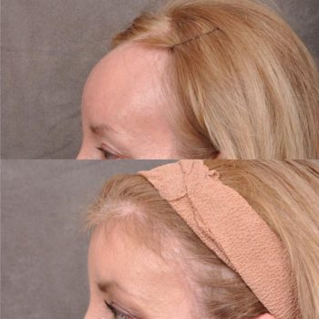 ForeheadPlasty / Hairline Lowering - Left Side