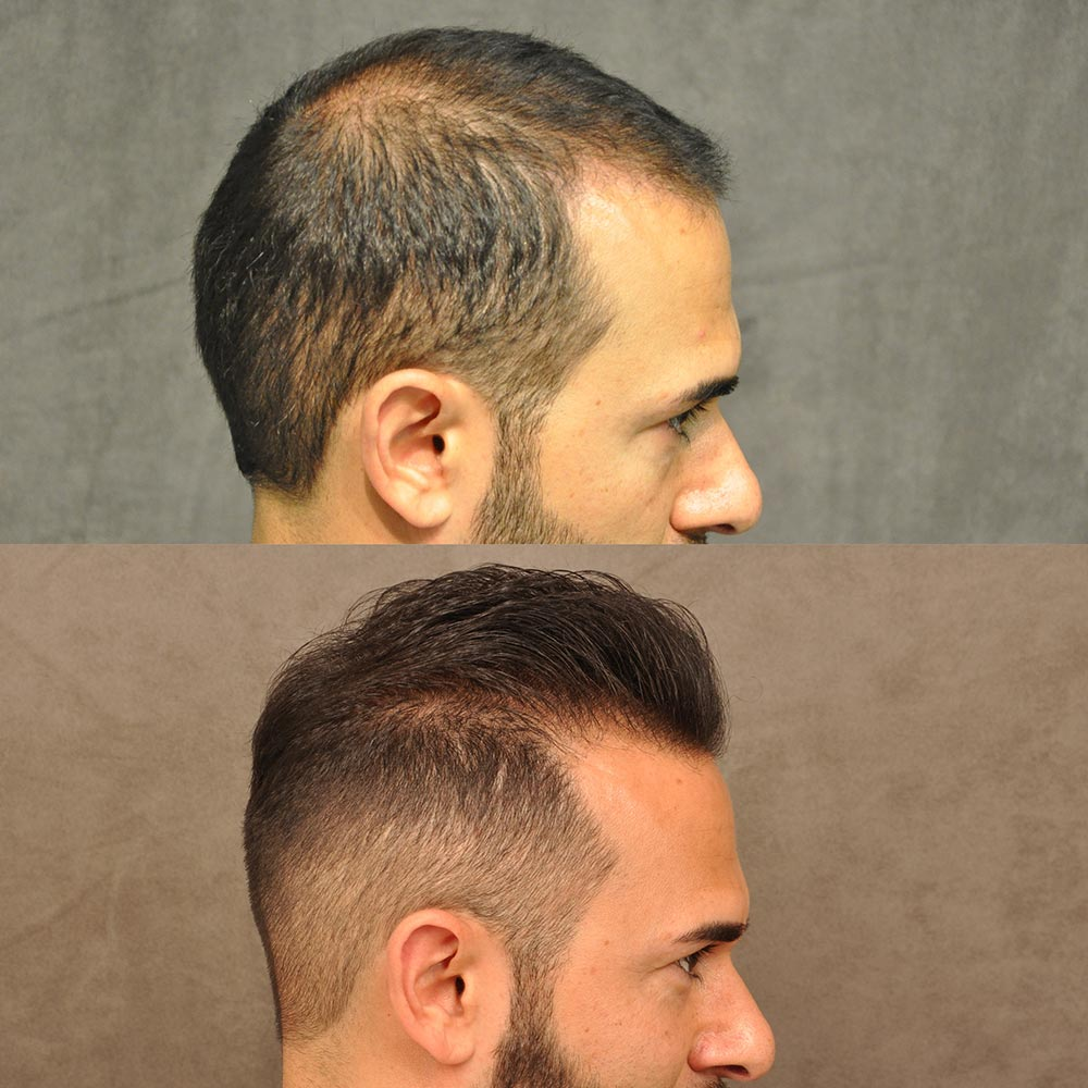 Beverly Hills Hair Transplant Before And After Pictures Results