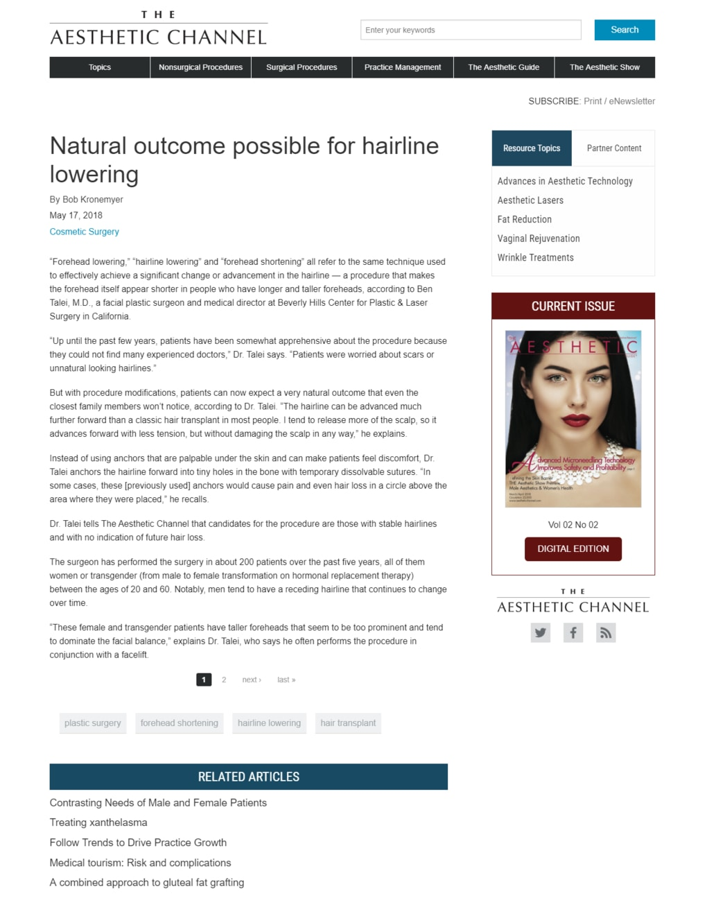 The article thumbnail: Natural outcome possible for hairline lowering