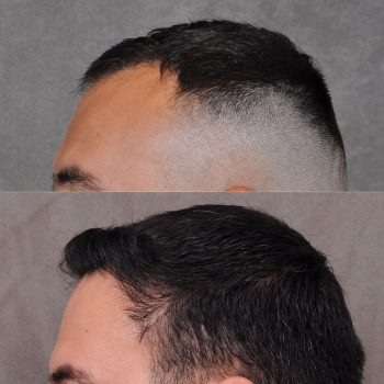 A combination of a FUE hair transportation and PRP treatment