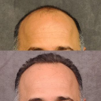 Results at 18 months post-op of a lovely patient who got 2,500 grafts