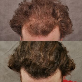Phenomenal 9 months results of a patient who got a combination of a FUE hair transplant and PRP treatment.